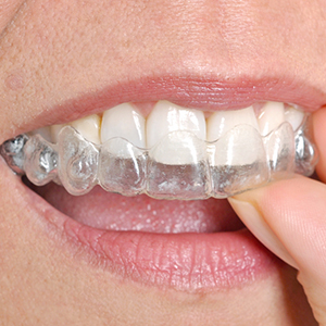 Invisalign at RTC Smiles