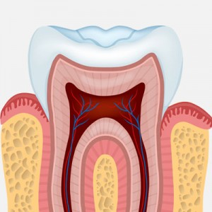 Root canal and crown cost – RTC Smiles