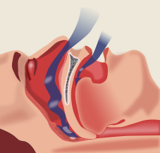 Sleep Apnea Treatment - Smiles RTC