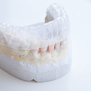 Reston Clear Braces Solution
