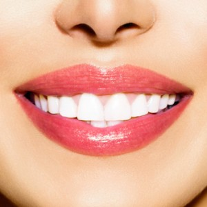 Veneers Dental, Reston