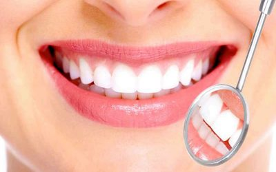 Teeth Whitening Dentists in Reston